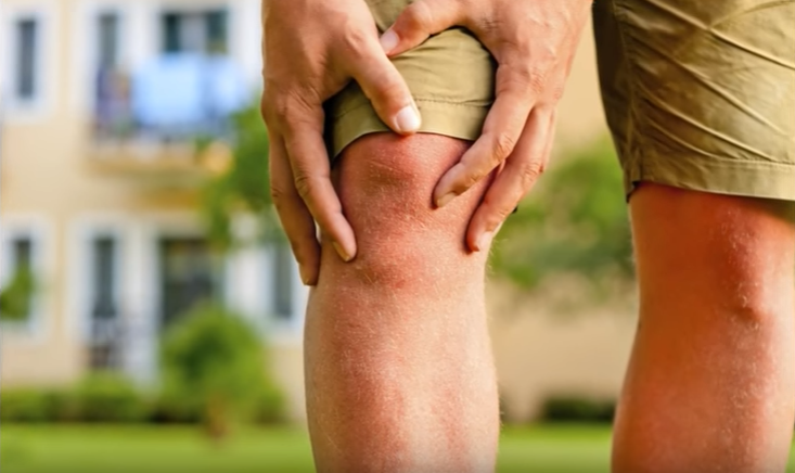 Arthritis home remedy treatment | tips for arthritis and joint pain